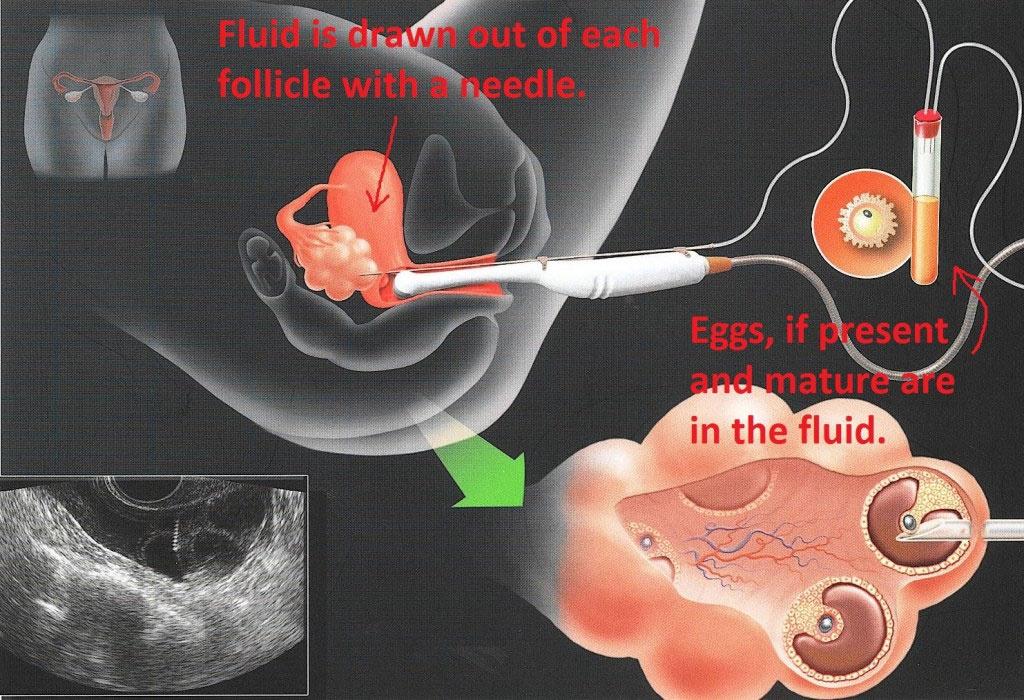 Как выходит сперма с пизды 121